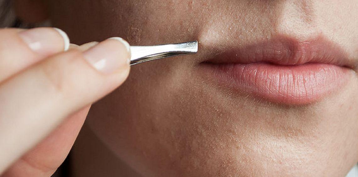 علاج ارتفاع هرمون الذكورة